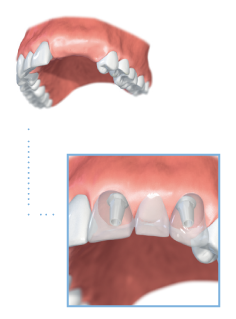 multiple teeth denture