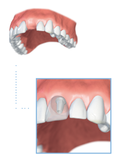 single tooth denture