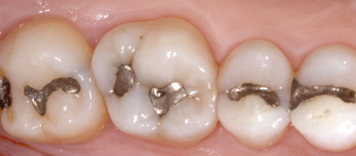 tooth coloured filling
