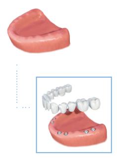 full arch denture